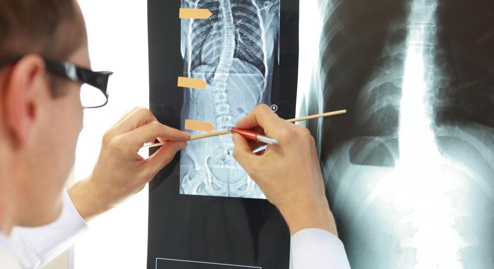 médicos en cirugía articular y artroscopia en Puebla