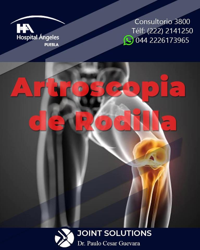 cirugía articular y artroscopia en Puebla
