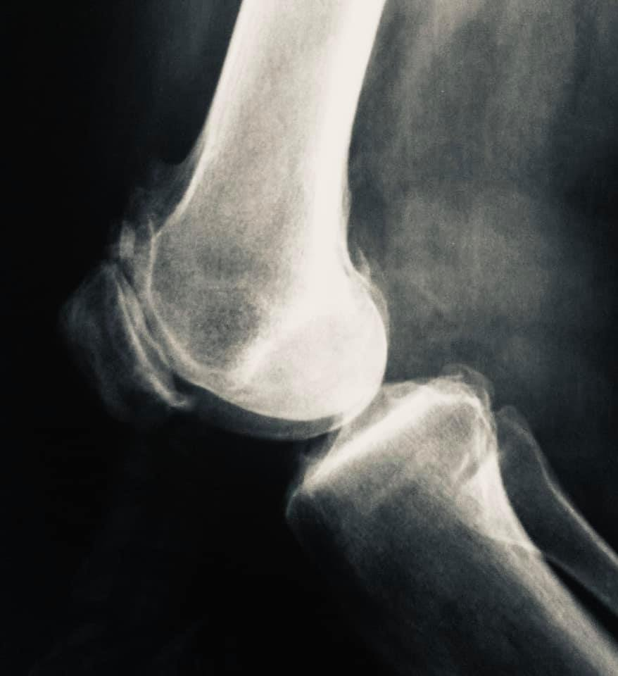¿Qué es la artroscopia de rodilla?